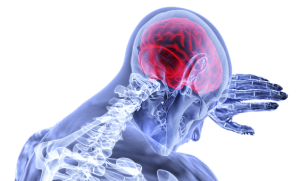 traumatic brain injury, TBI